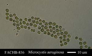 Microcystis aeruginosa